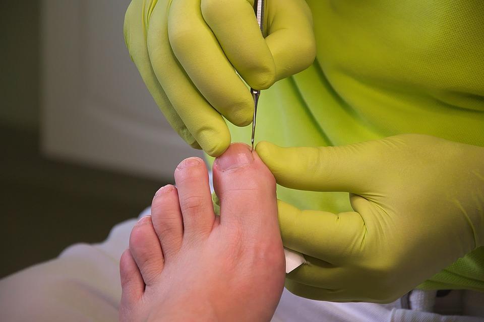 Brokered Foot Care Nurse